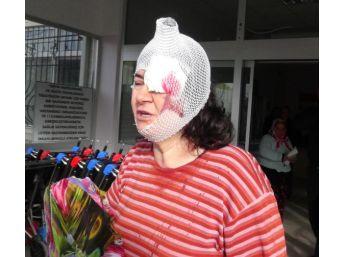 Eşi Ve Kayınbiraderi Tarafından Dövülen Kadın Hastanelik Oldu