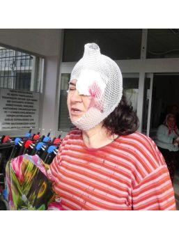 Eşi Ve Öğretmen Kaynı Tarafından Dövüldü