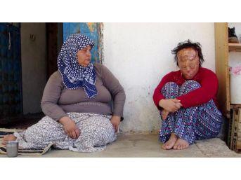 Yüz Nakli Bekleyen Leyla, Önce Psikolojisinin Düzelmesini Istiyor