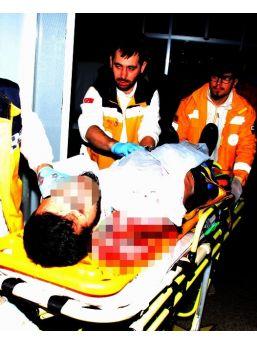 Bıçaklı Saldırıda Yaralandı