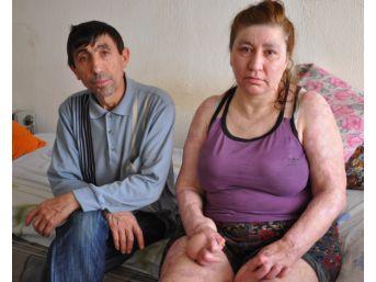 Trafik Kazasında Yanan Kadın Eşinin Desteği İle Hayata Tutundu