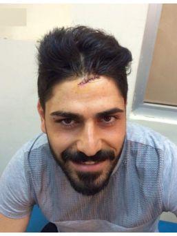Trabzonsporlu Futbolcu İbrahim Demir, Trafik Kazası Geçirdi