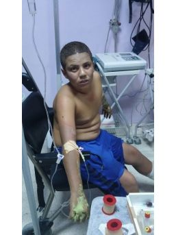 Çakmak Gazı Patlayınca 3 Çocuk Yaralandı