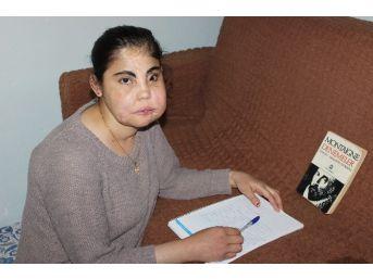 Türkiye'nin Yüz Nakli Yapılan İlk Kadını Hayatını Kaybetti