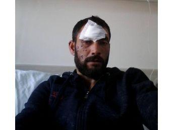 Taşınabilir Şarj Aleti Patlayınca Yaralandı