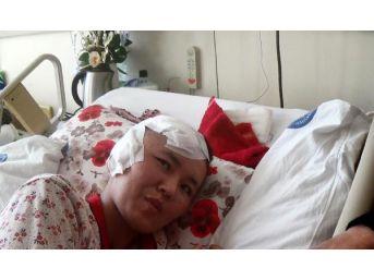 Fuhşa Zorlanıp Öldüresiye Dövülen Kırgız Kadın 58 Gün Sonra Taburcu Oldu
