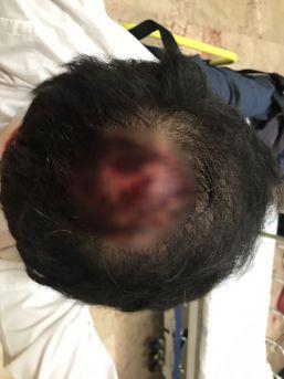 İzmirli İşadamı Öldüresiye Dövüldü