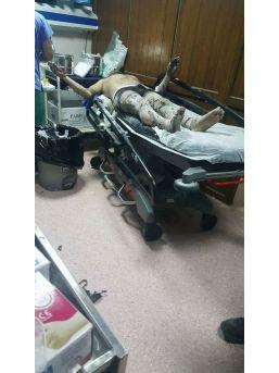 Elektrik Trafosunda Patlama: 2 İşçi Yaralı