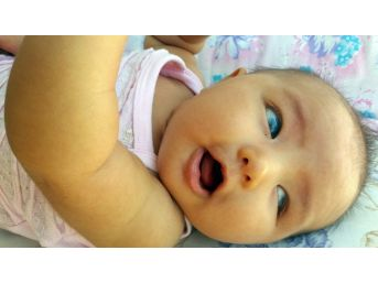 Masal Bebek Kornea Nakli Yapılmazsa Karanlıkta Kalacak