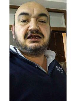 (özel) Sarıyer'de Uber Sürücüsünü Darp Edip Dişlerini Kırdılar